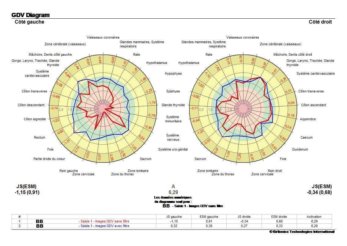 bb-meridien-avant-prise-eau-vortex-min