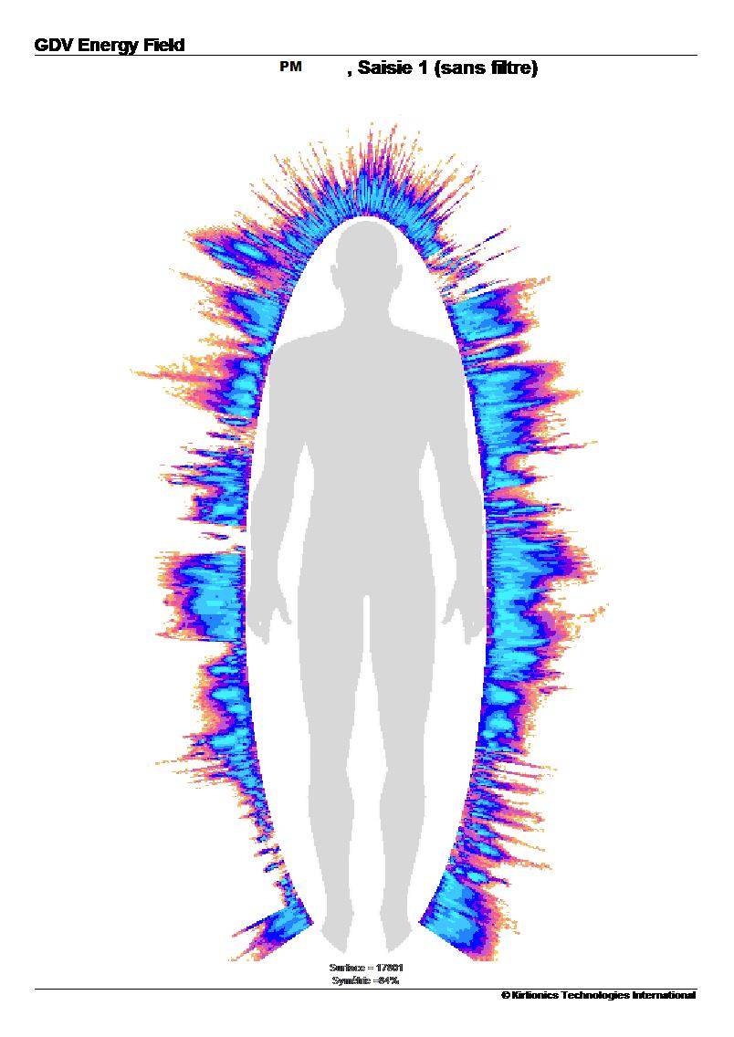 pm-aura-apres-prise-eau-vortex-min