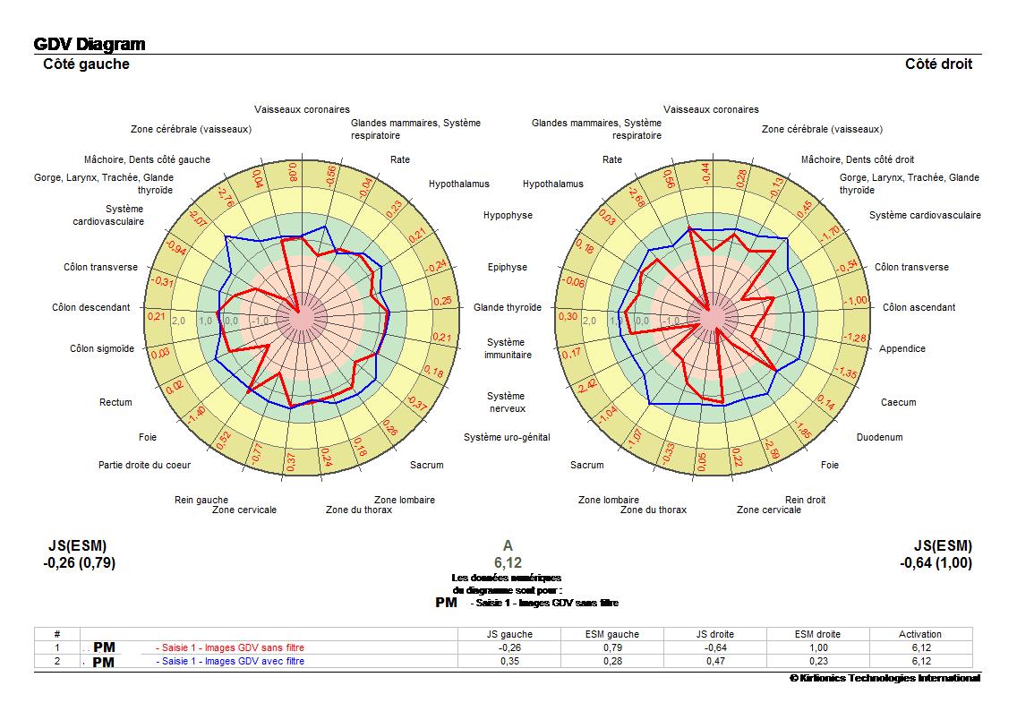 pm-meridien-avant-prise-eau-vortex-min