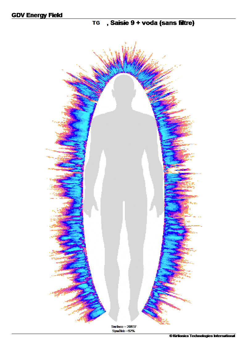 tg-aura-apres-prise-eau-vortex-min