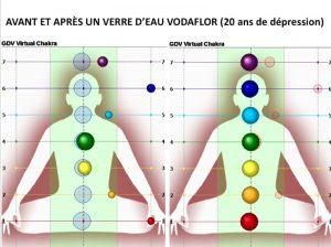 Dr Guy Londechamp – Ciné Forum Avant et après un verre d'eau Vodaflor
